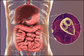 Giardia allopathic medicine, Related Articles