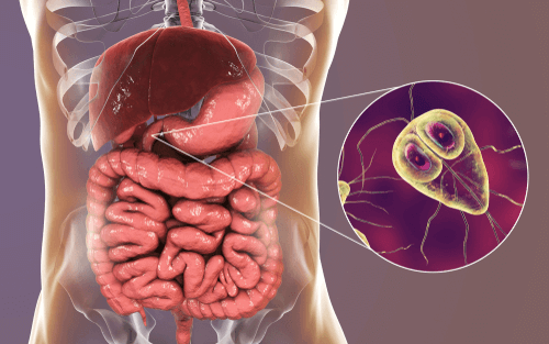 does giardia cause weight loss)